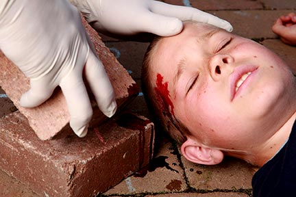 Children like this injured child are frequently hurt while on the property of another, sometimes due to a dangerous condition on the property or lack of a warning sign. If you or your child has been hurt on someone's property, call a Kenner Premises Liability Lawyer today for an assessment of your case.